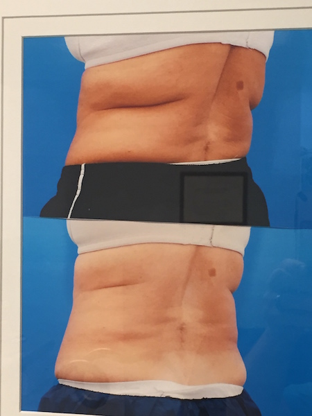 before and after cool sculpting