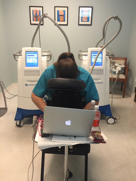 working during coolsculpting procedure