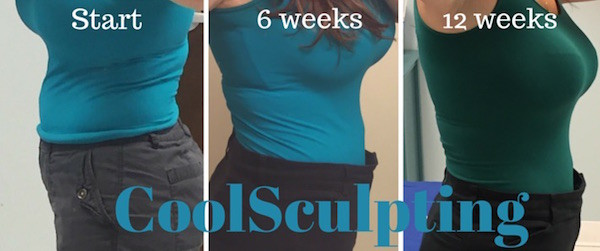 coolsculpting 12 week recap