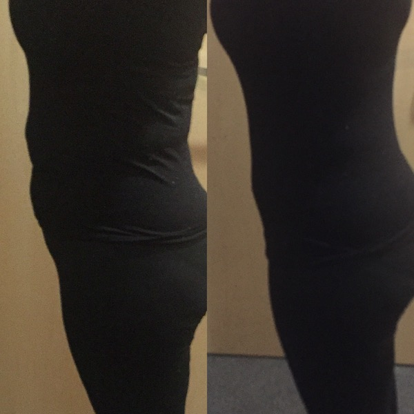 strawberry laser lipo before and after